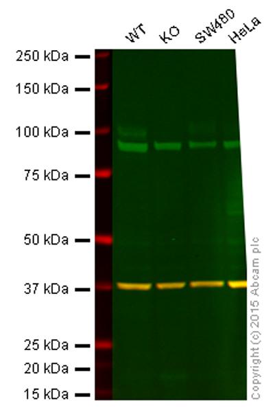 Western blot - Anti-Sortilin antibody (ab57672)