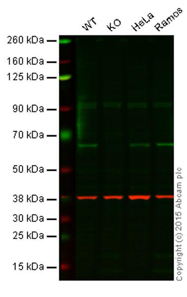 Western blot - Anti-RIP2 antibody (ab57954)
