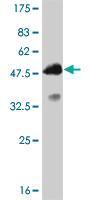 Western blot - Anti-Twist2 antibody (ab57997)