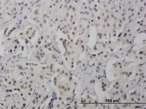 Immunohistochemistry (Formalin/PFA-fixed paraffin-embedded sections) - Anti-RNF168 antibody (ab58063)