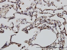 Immunohistochemistry (Formalin/PFA-fixed paraffin-embedded sections) - Anti-YY1 antibody (ab58066)