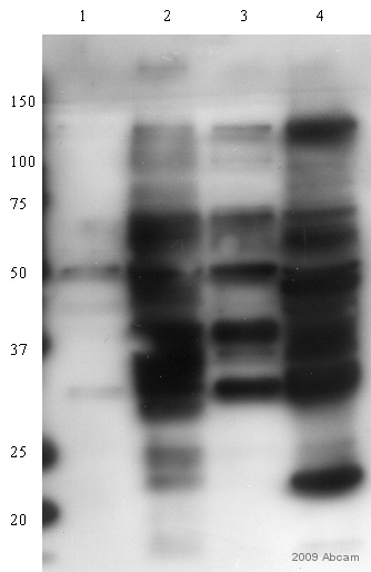Western blot - Anti-Robo1 antibody (ab58297)