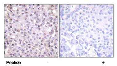 Immunohistochemistry (Formalin/PFA-fixed paraffin-embedded sections) - Anti-Nuclear Receptor Corepressor NCoR antibody (ab58396)