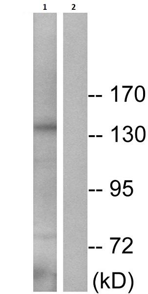 Western blot - Anti-IRS1 (phospho S616) antibody (ab58479)