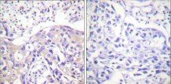 Immunohistochemistry (Formalin/PFA-fixed paraffin-embedded sections) - Anti-alpha Adducin (phospho T445) antibody (ab58485)