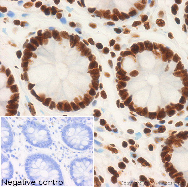 Immunohistochemistry (Formalin/PFA-fixed paraffin-embedded sections) - Anti-Histone H2A (acetyl K5) antibody (ab58548)