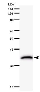 Western blot - Anti-TRIOBP antibody [2438C1a] (ab58638)