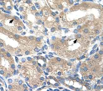 Immunohistochemistry (Formalin/PFA-fixed paraffin-embedded sections) - Anti-ADH1B antibody (ab58647)