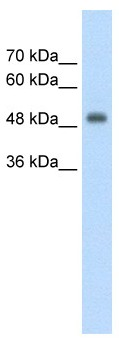 Western blot - Anti-CUEDC1 antibody (ab58696)