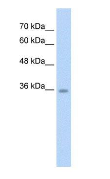Western blot - Anti-C6orf134 antibody (ab58742)