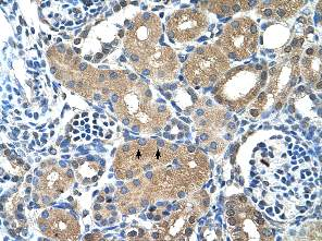 Immunohistochemistry (Formalin/PFA-fixed paraffin-embedded sections) - Anti-PPAP2A antibody (ab58745)