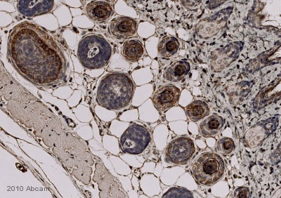 Immunohistochemistry (Formalin/PFA-fixed paraffin-embedded sections) - Anti-Trichohyalin antibody [AE15] (ab58755)