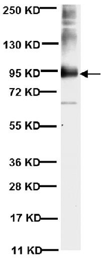 Western blot - Anti-MMP9 [56-2A4] antibody (ab58803)