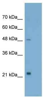 Western blot - Anti-TSH Receptor antibody (ab58917)