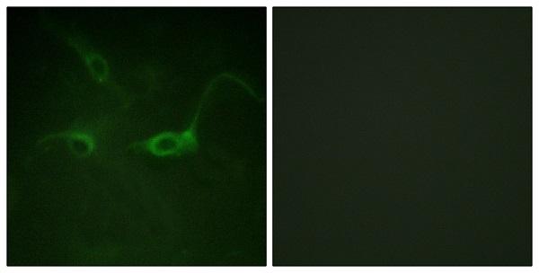 Immunocytochemistry/ Immunofluorescence - Anti-FGFR1 (phospho Y654) antibody (ab59194)