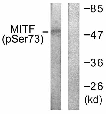 Western blot - Anti-MiTF (phospho S73) antibody (ab59201)