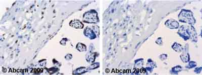 Immunohistochemistry (Formalin/PFA-fixed paraffin-embedded sections) - Anti-MCSF Receptor antibody (ab59231)