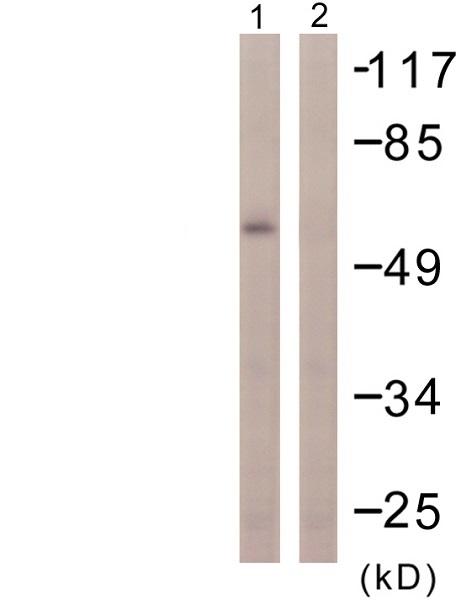 Western blot - Anti-PPAR gamma antibody (ab59256)