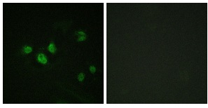 Immunofluorescence - Anti-SP1 (phospho T453) antibody - ChIP Grade (ab59257)