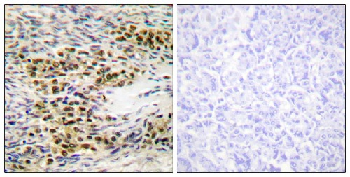 Immunohistochemistry (Formalin/PFA-fixed paraffin-embedded sections) - Anti-AKT1 antibody (ab59284)
