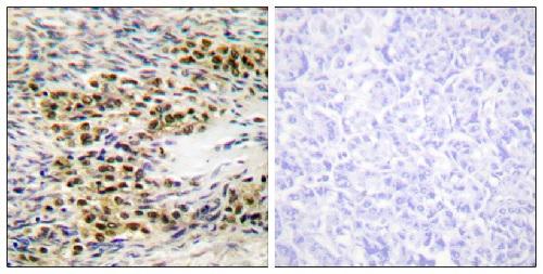 Immunohistochemistry (Formalin/PFA-fixed paraffin-embedded sections) - Anti-AKT1 antibody (ab59284)
