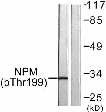 Western blot - Nucleophosmin (phospho T199) antibody (ab59353)