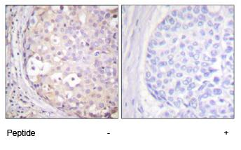 Immunohistochemistry (Formalin/PFA-fixed paraffin-embedded sections) - PKC antibody (ab59363)