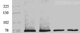 Western blot - Anti-PKC zeta antibody (ab59364)