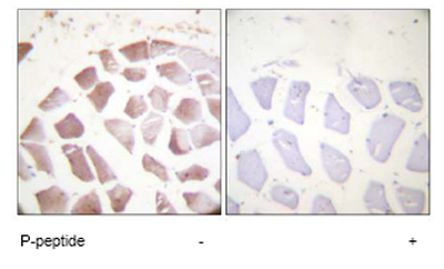 Immunohistochemistry (Formalin/PFA-fixed paraffin-embedded sections) - Anti-beta Actin (phospho Y55 + Y53) antibody (ab59381)