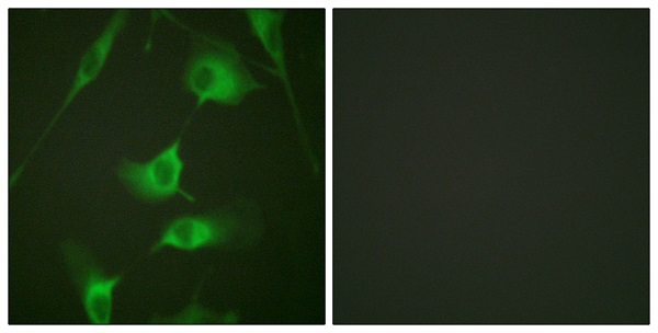 Immunocytochemistry/ Immunofluorescence - Anti-Cytokeratin 8 antibody (ab59400)