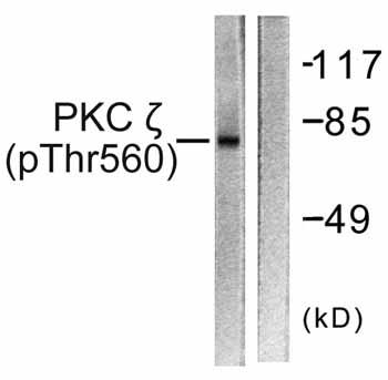 Western blot - Anti-PKC zeta (phospho T560) antibody (ab59412)
