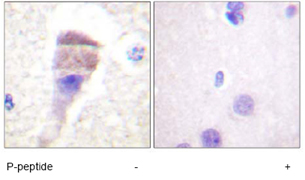 Immunohistochemistry (Formalin/PFA-fixed paraffin-embedded sections) - Anti-PKC mu (phospho S205) antibody (ab59413)
