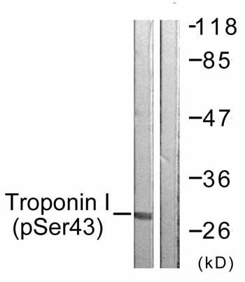 Western blot - Anti-cardiac Troponin I (phospho S43) antibody (ab59420)
