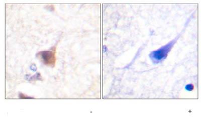 Immunohistochemistry (Formalin/PFA-fixed paraffin-embedded sections) - Anti-CAMKIV (phospho T196 + T200) antibody (ab59424)