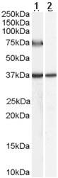 Western blot - Anti-ACOX2 antibody (ab59516)