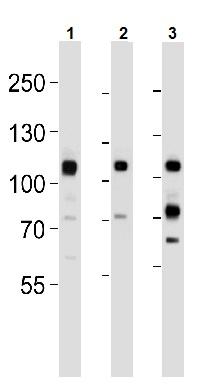 Western blot - Anti-Met (c-Met) antibody [ 4AT44] (ab59884)