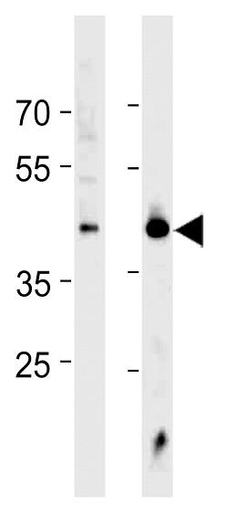 Western blot - Anti-HSF1 antibody (ab59963)
