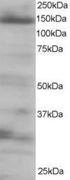 Western blot - Anti-eIF4ENIF1 antibody (ab6034)