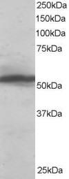 Western blot - Anti-KPNA2 antibody (ab6036)