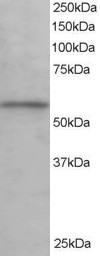 Western blot - Anti-KPNA3 antibody (ab6038)