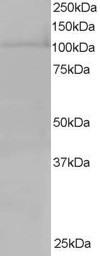 Western blot - Anti-RanBP16 antibody (ab6041)