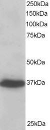 Western blot - Anti-RIL antibody (ab6045)