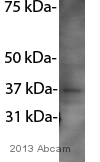 Western blot - Anti-Cyclin D1 antibody [CD1.1] (ab6152)
