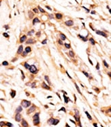 Immunohistochemistry (Formalin/PFA-fixed paraffin-embedded sections) - Anti-Rb (phospho S608) antibody (ab60025)