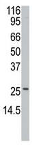 Western blot - Anti-APH1a antibody - N-terminal (ab60119)