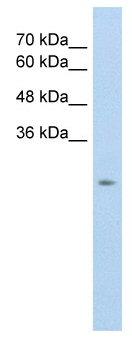 Western blot - Anti-SLC25A45 antibody (ab60135)