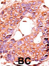 Immunohistochemistry (Formalin/PFA-fixed paraffin-embedded sections) - Anti-PPP6C antibody (ab60249)