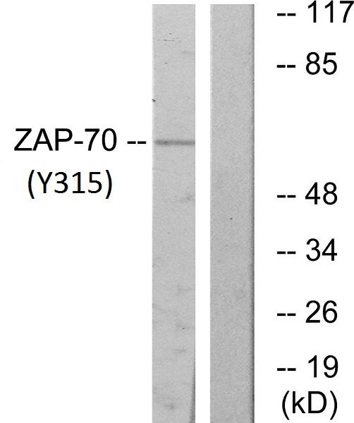 Western blot - Anti-ZAP70 (phospho Y315) antibody (ab60970)