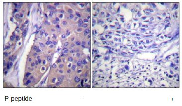Immunohistochemistry (Formalin/PFA-fixed paraffin-embedded sections) - Anti-Raf1 (phospho S296) antibody (ab60985)