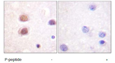 Immunohistochemistry (Formalin/PFA-fixed paraffin-embedded sections) - Anti-p38 (phospho Y322) antibody (ab60999)